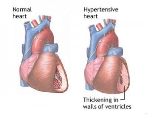 hypertensive heart