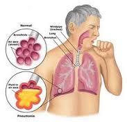 pneumonia image