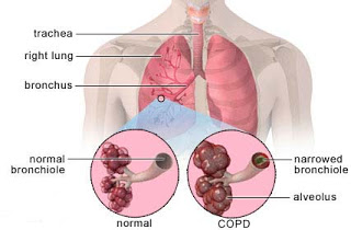 Nursing Intervention for COPD